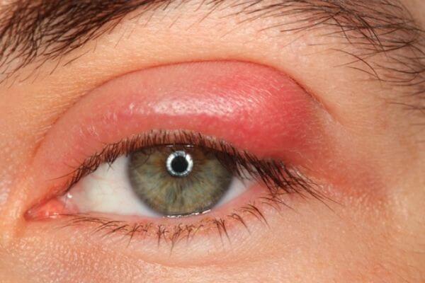 Hướng dẫn cách massage mắt khi bị sưng