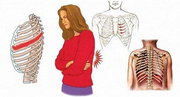 Nguyên nhân đau tức ngực khi tập thể dục